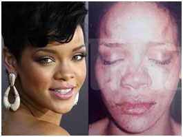 Rhianna before and after she got beat up